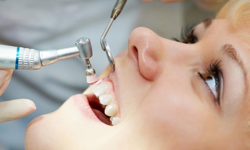 Tooth Scale Polish Tullamore