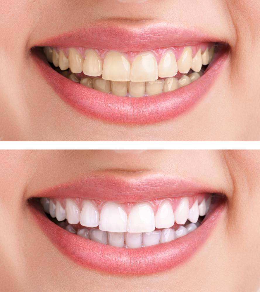 Teeth Whitening Tullamore